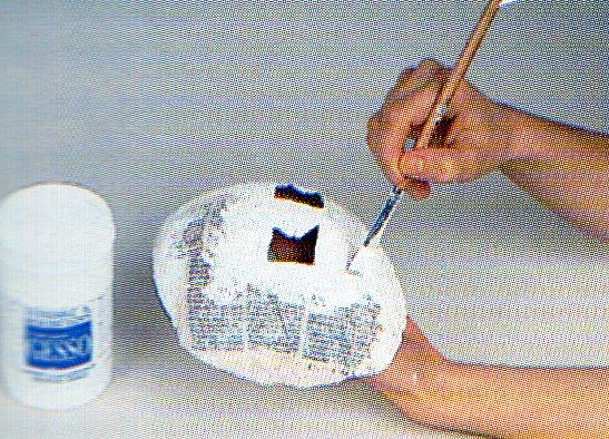 La photo après lopération plastique les bretelles de la personne